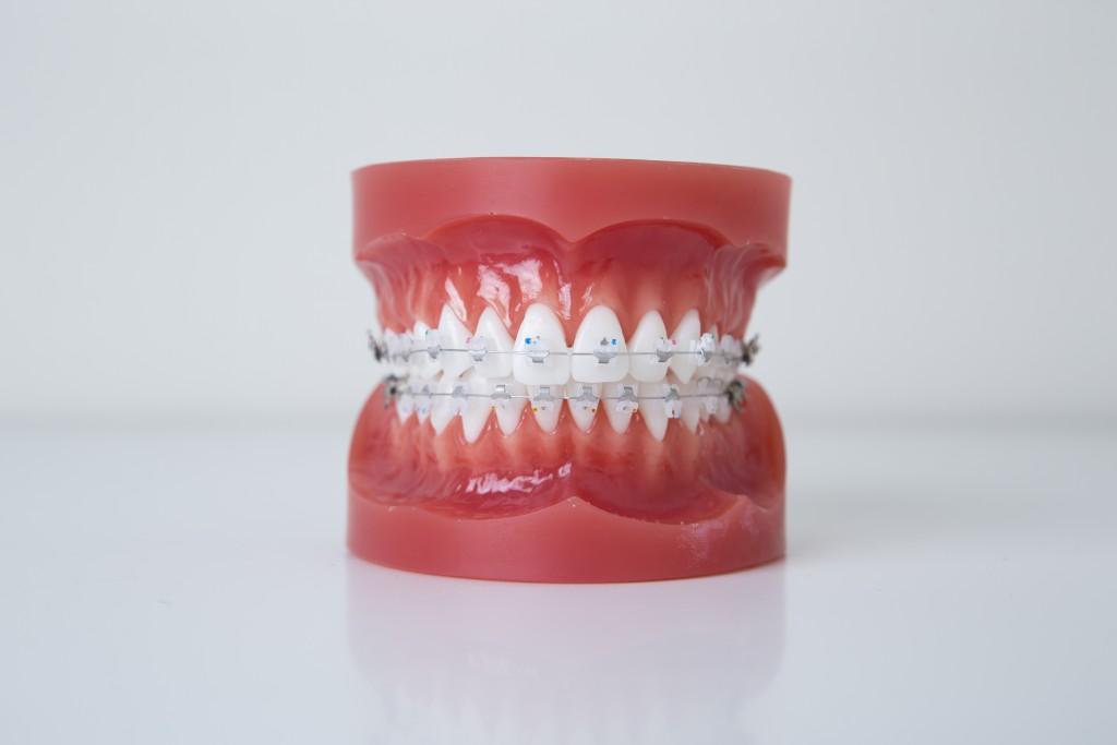 上下表側歯列矯正