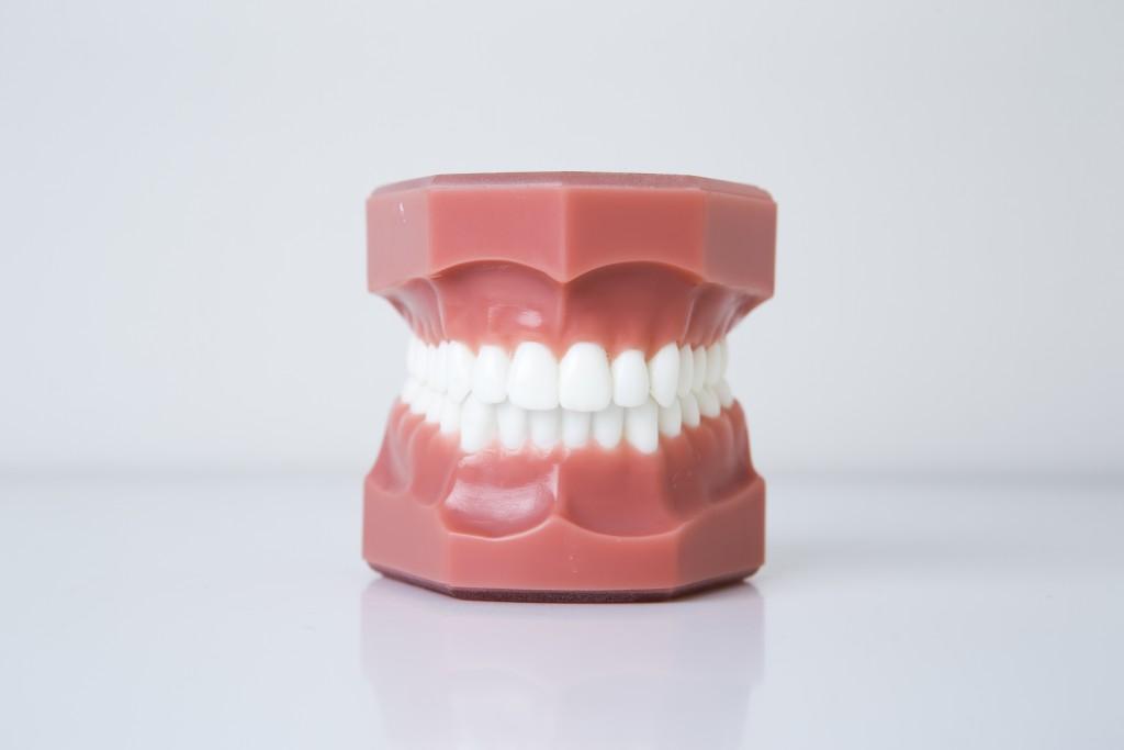 上下裏側歯列矯正