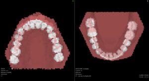 非抜歯(裏側矯正またはインビザラインフル)