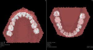 抜歯(裏側+マウスピース型の装置)